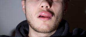 An image of a swollen lip.